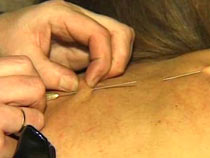 Needles insertion